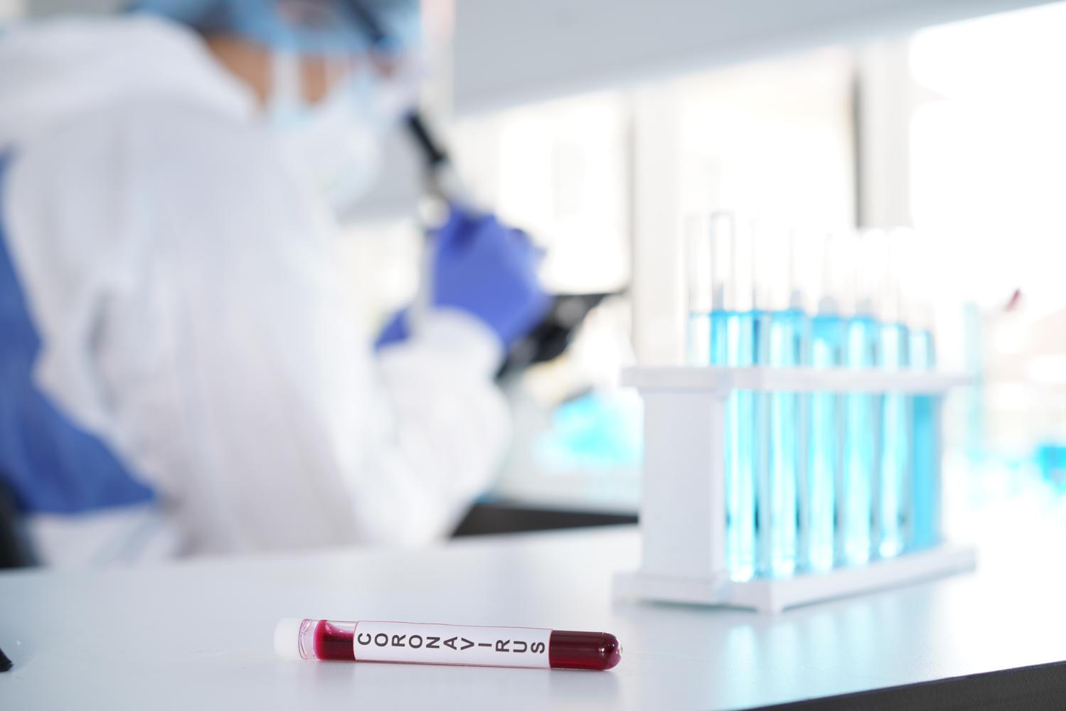 Госдеп США: «Есть новая информация о происхождении пандемии из китайской лаборатории»