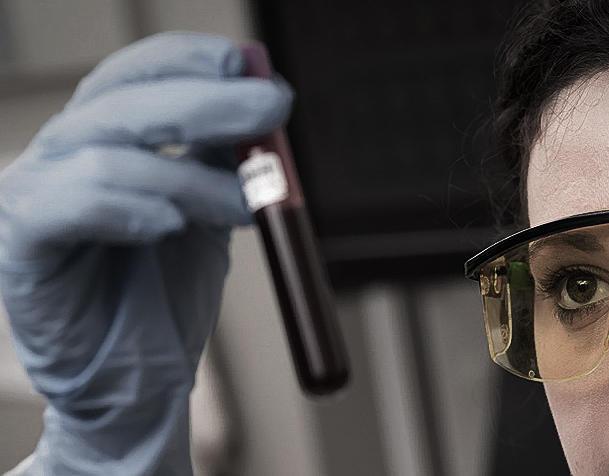 Израильские ученые открыли путь к лечению неизлечимой эпилепсии